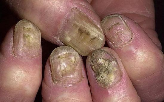 Как лечить грибок ногтей уксусной кислотой