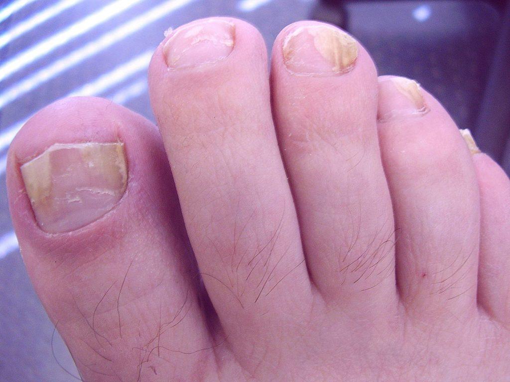 Лечение грибка ногтей борной кислотой