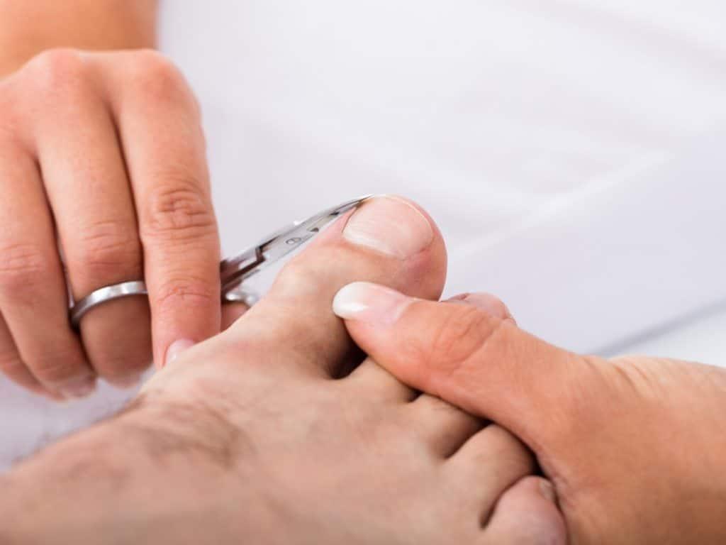 Болит мизинец на ноге грибок thumbnail