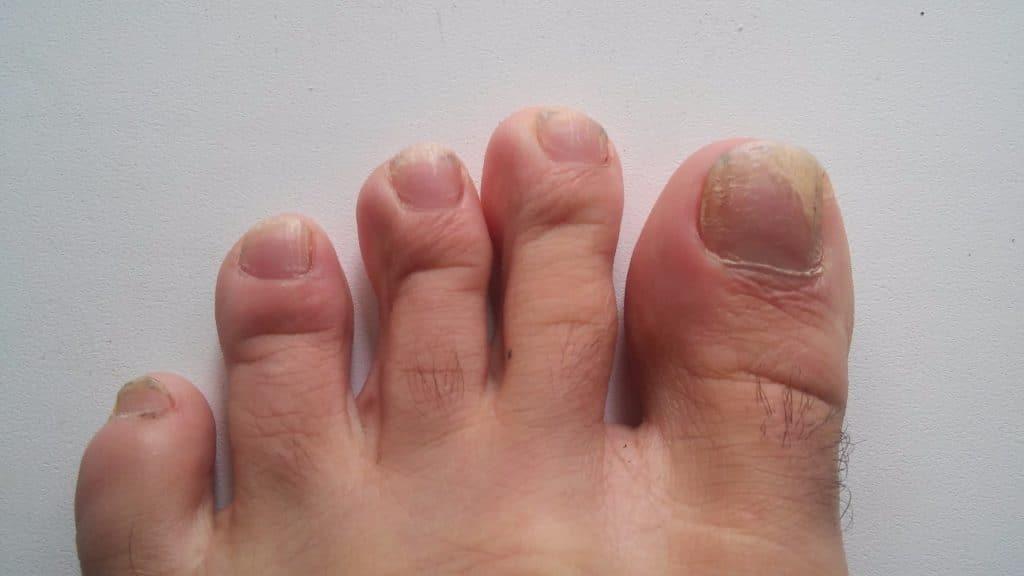 Как использовать глицерин от грибка ногтей