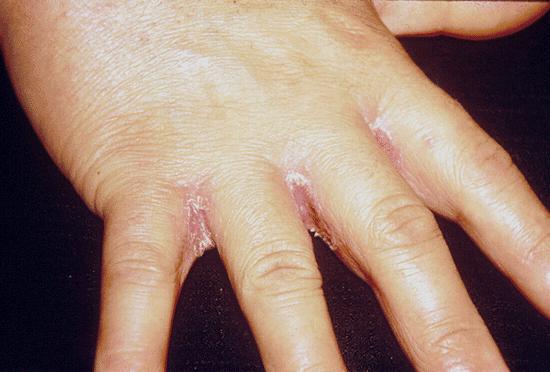 Методы лечения грибка между пальцами рук