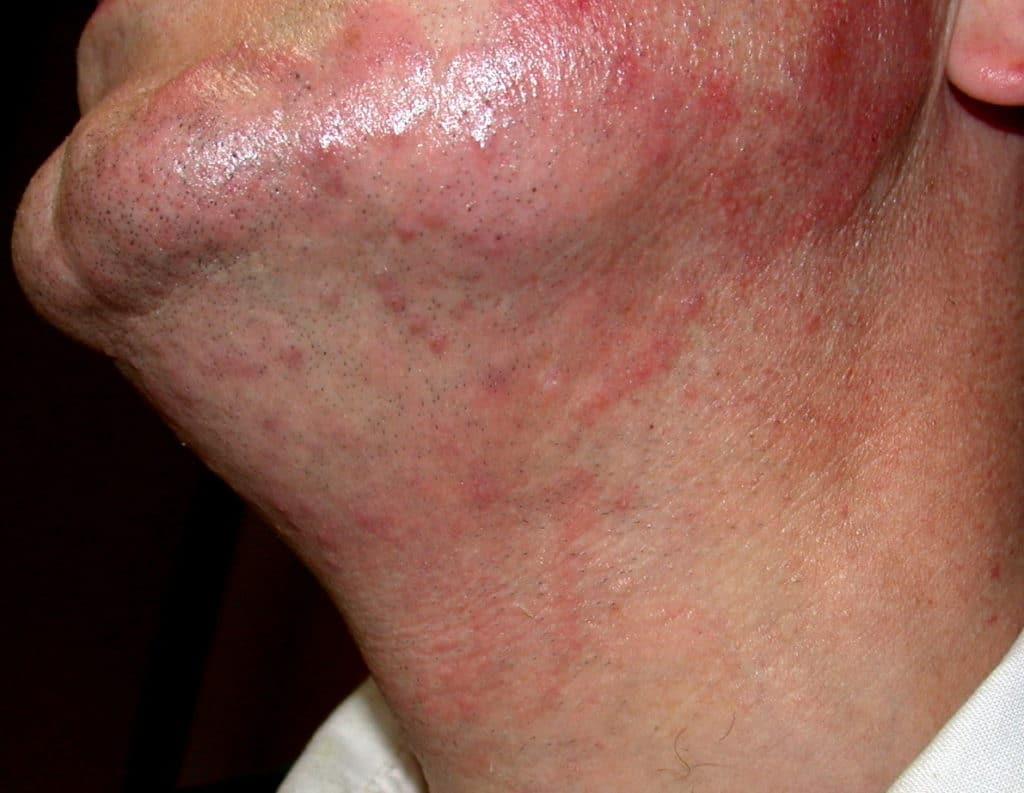 Дерматофития на коже
