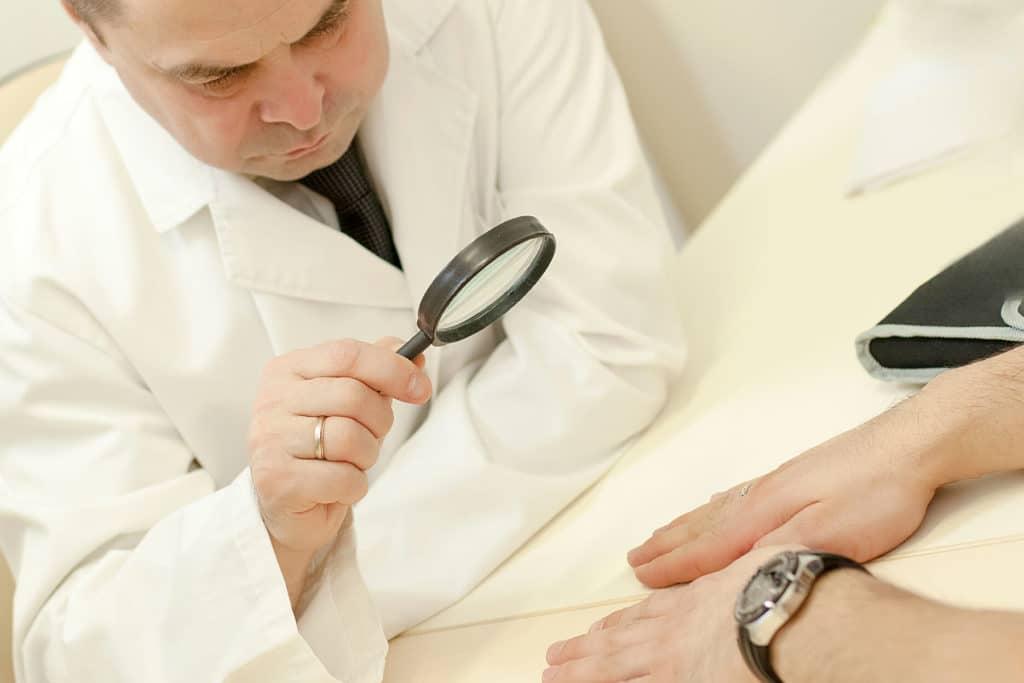 Лечение дерматофитии