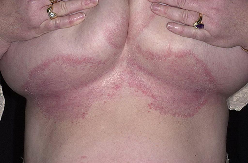 Симптомы грибка под грудью
