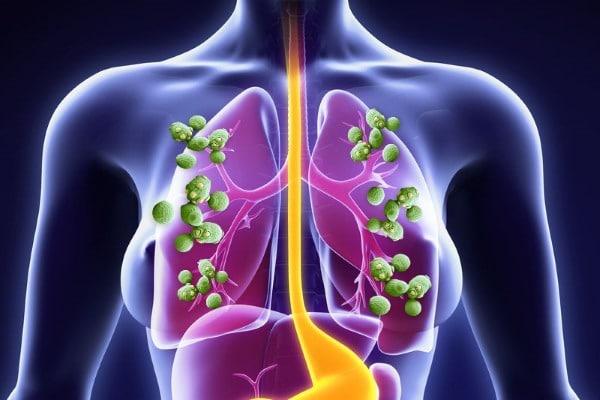 Грибок в легких: симптомы и принципы лечения