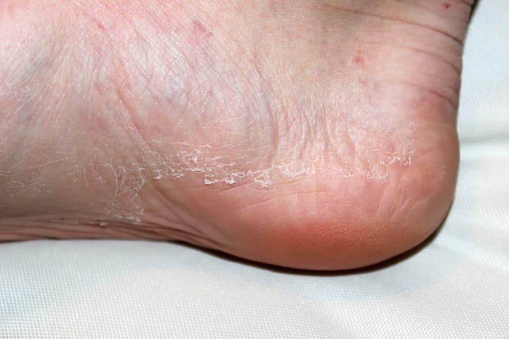 Симптомы дерматофитии ног