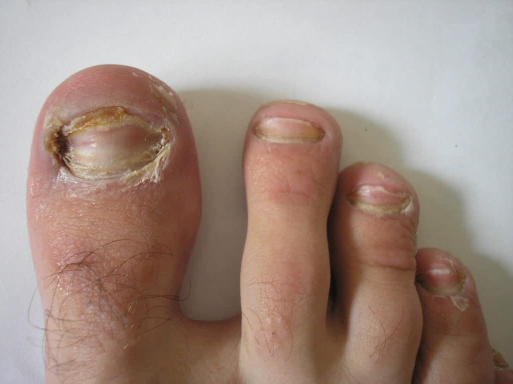 Лечение грибка ногтей белизной