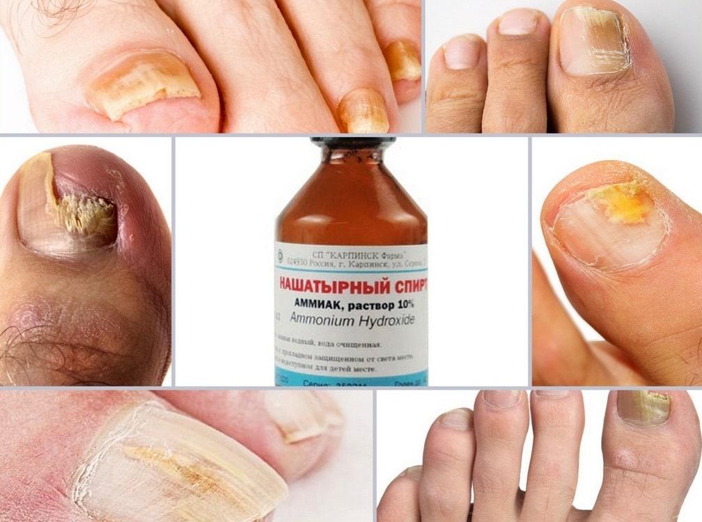 Лечение грибковых заболеваний
