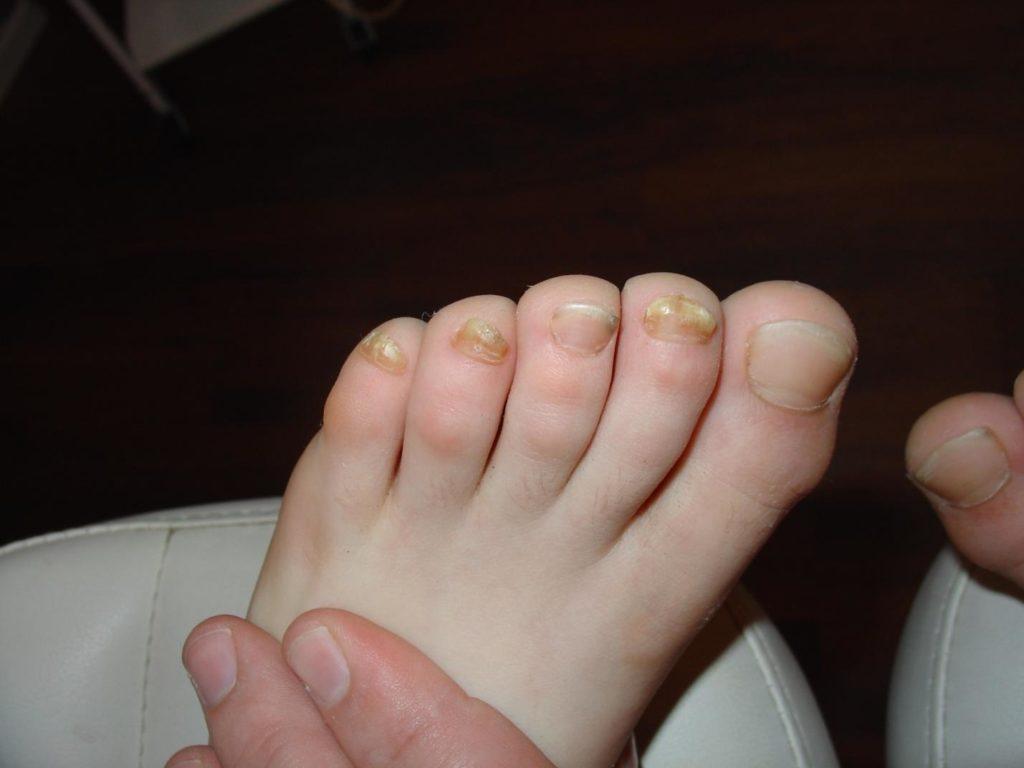 Чеснок от грибка ногтей