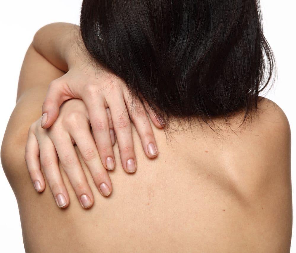 Грибок на спине: как выглядит и чем лечить?