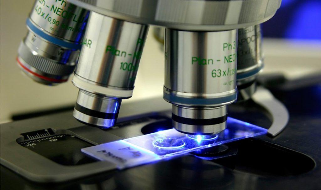 Анализ на грибок