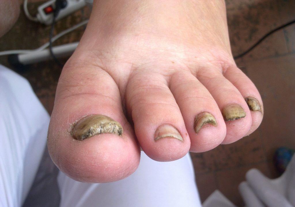 Дерматомикоз ногтей пальцев ног