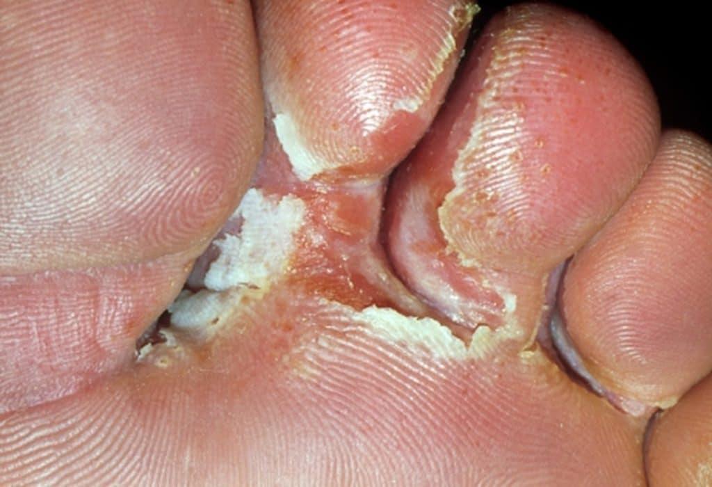 Грибок пальцев ног