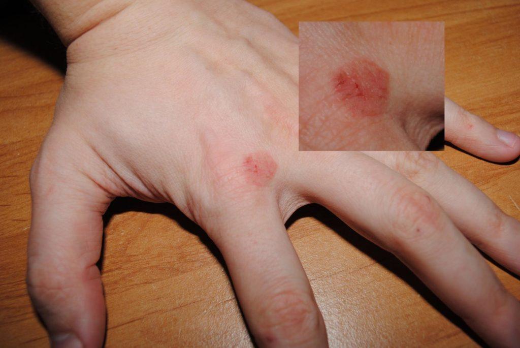 Противопоказания использования Экзодерила