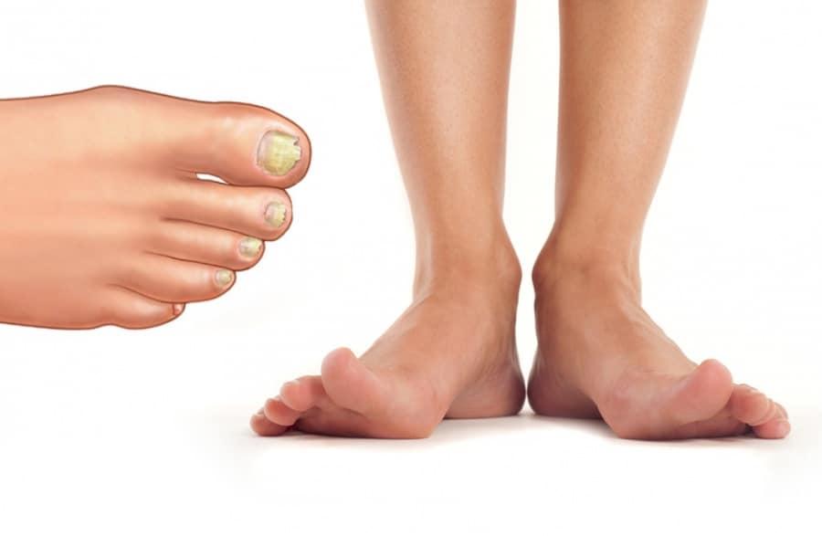 Показания к лазерному удалению ногтя