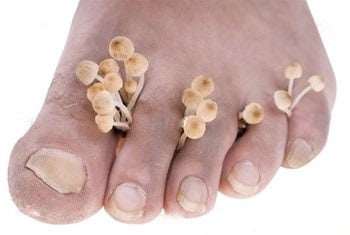 Запущенный грибок на ногтях и коже: чем опасен и как лечить?