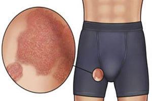 Как лечить грибок в паху у мужчин