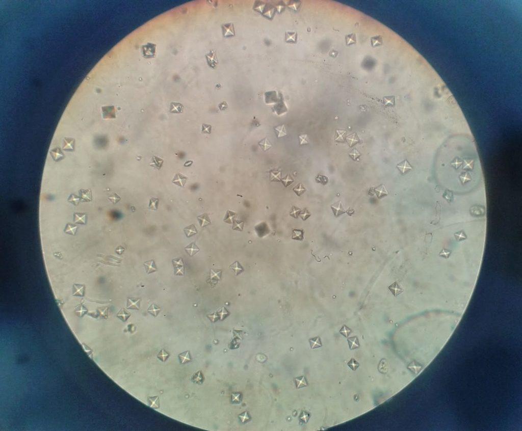 Дрожжевые грибки в моче