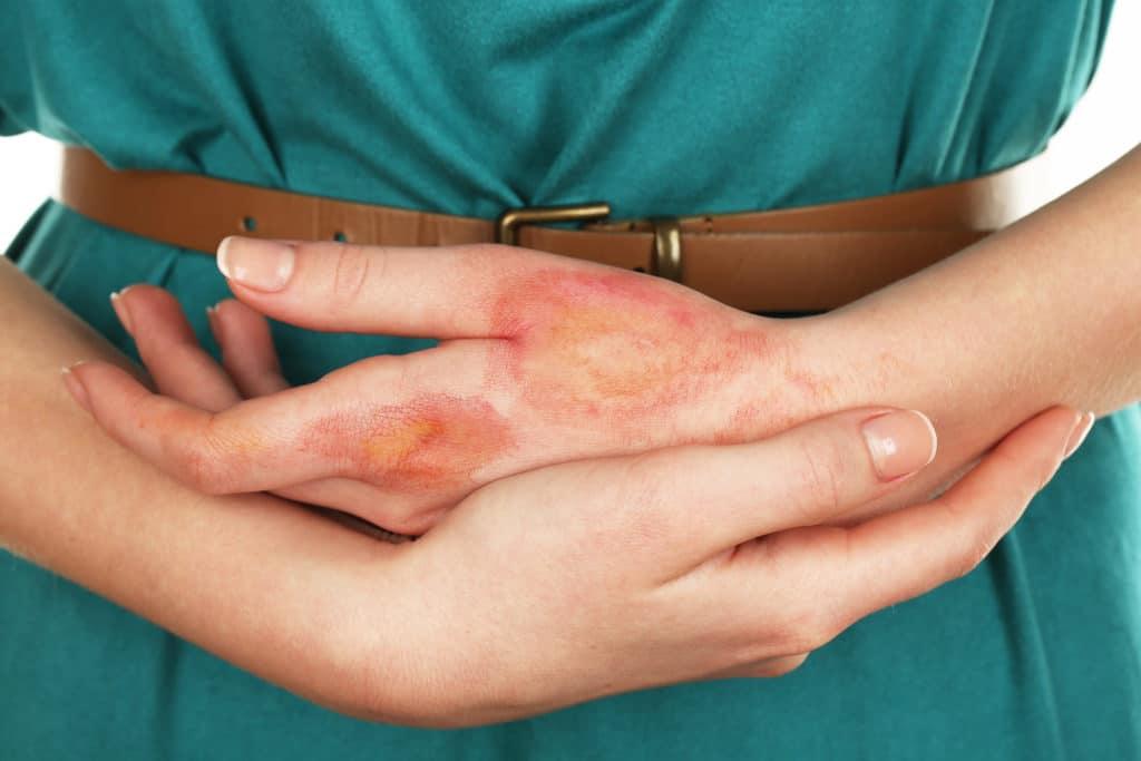 Противопоказания соды при грибке ногтей