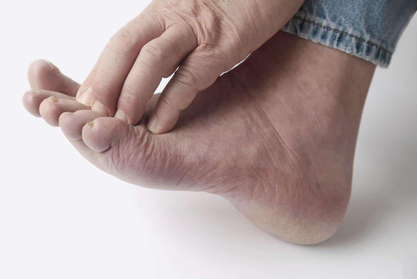 Грибок на ногах как выглядит