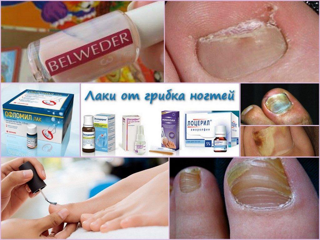 Лоцерил – лак от грибка ногтей. Отзывы о использовании и цена препарата