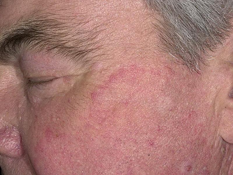 Чем лечить дерматомикоз у человека