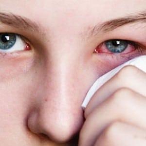 Грибок на глазах: основные симптомы и способы лечения