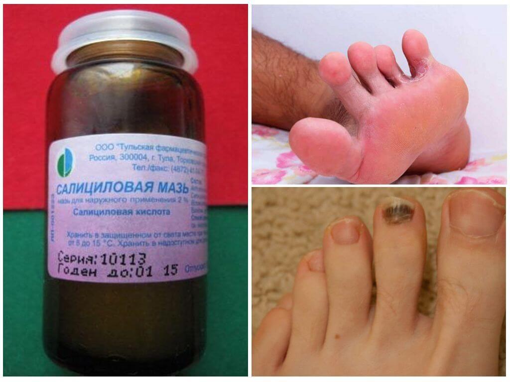 Салициловая мазь от грибка ногтей