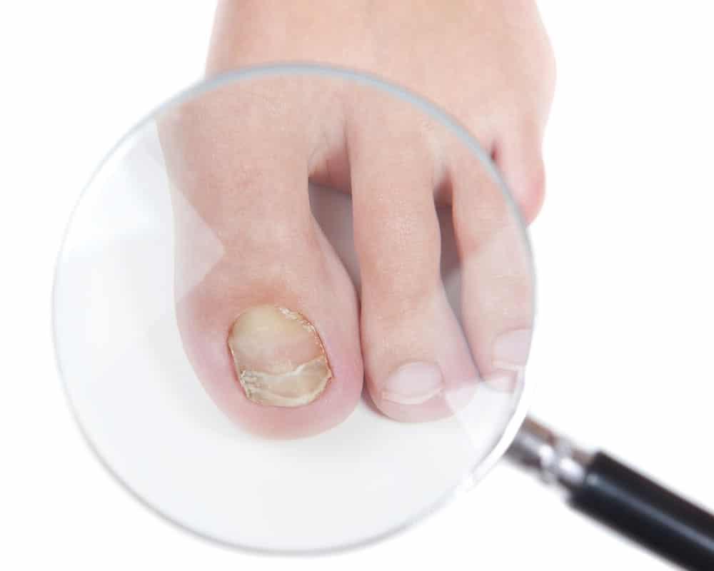 Можно ли делать педикюр при грибке ногтей