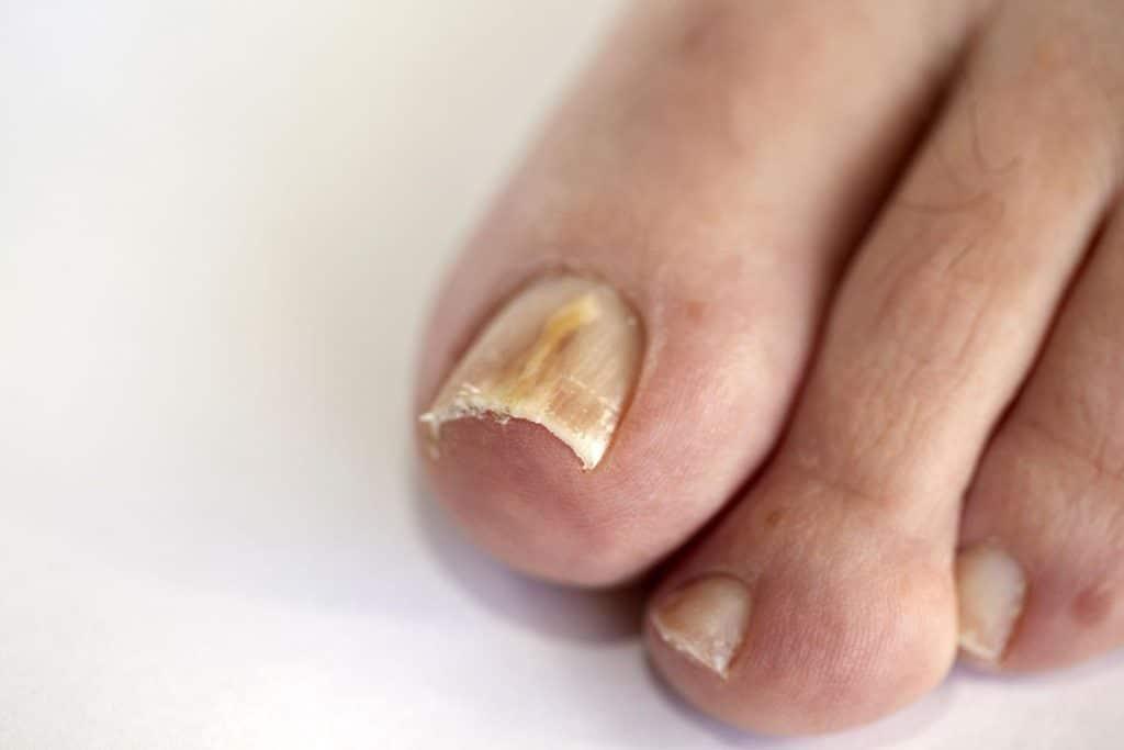 Грибок ногтя на большом пальце:  причины грибкового поражения, диагностика и лечение