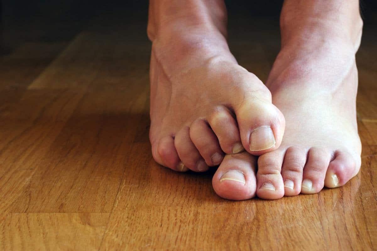 Причины грибкового поражения ногтя и факторы риска