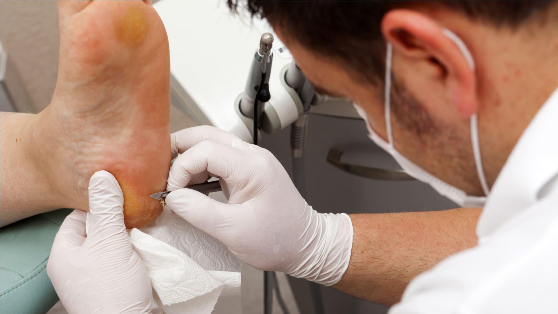 Анализ кожи на грибок