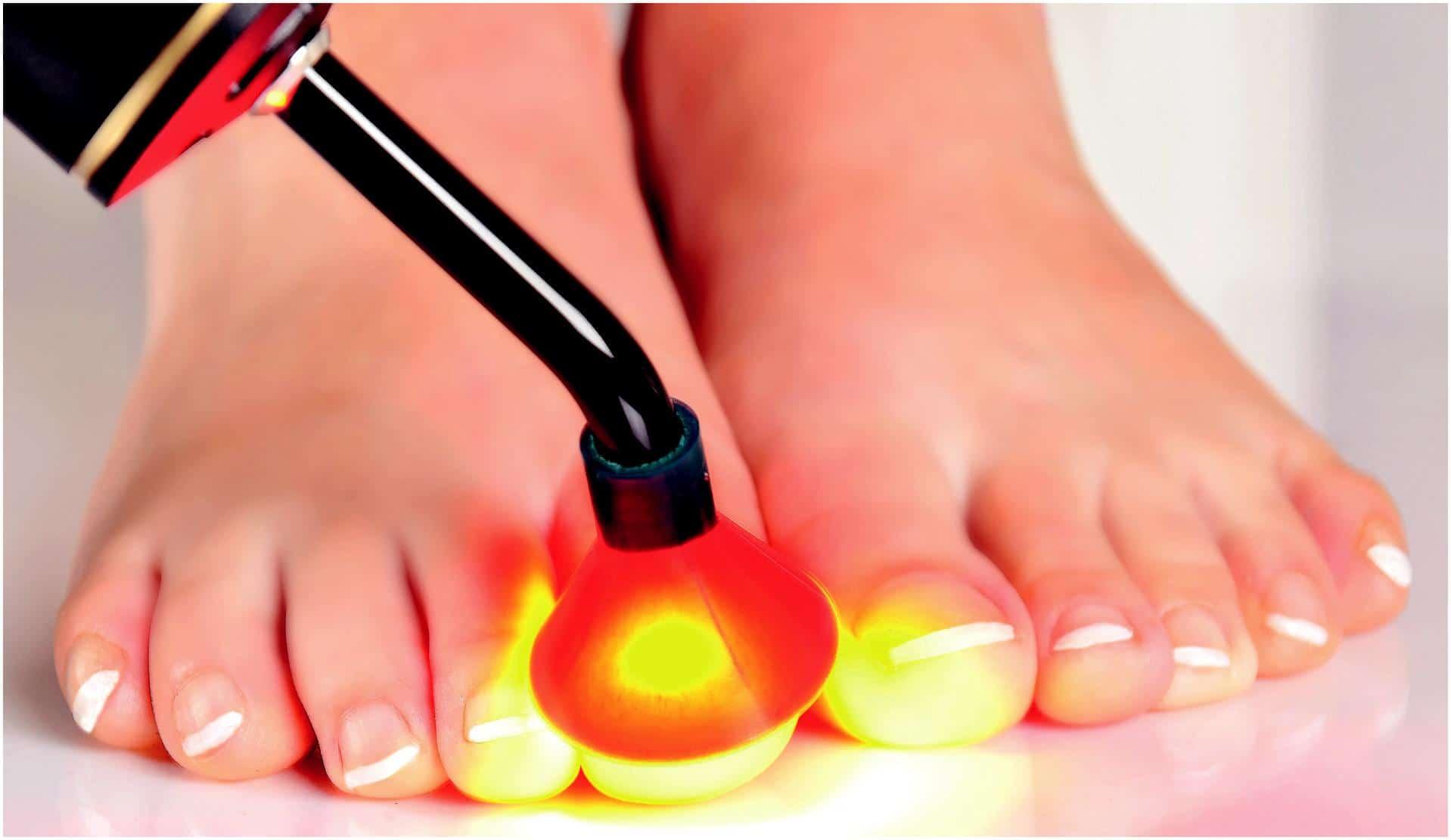 Воздействие лазером при грибке большого пальца ноги