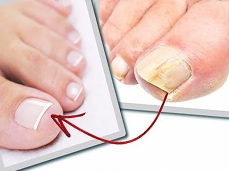 Онихопласт: состав и применение при грибке ногтей