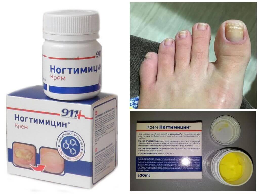 Фармакологические свойства Ногтимицина