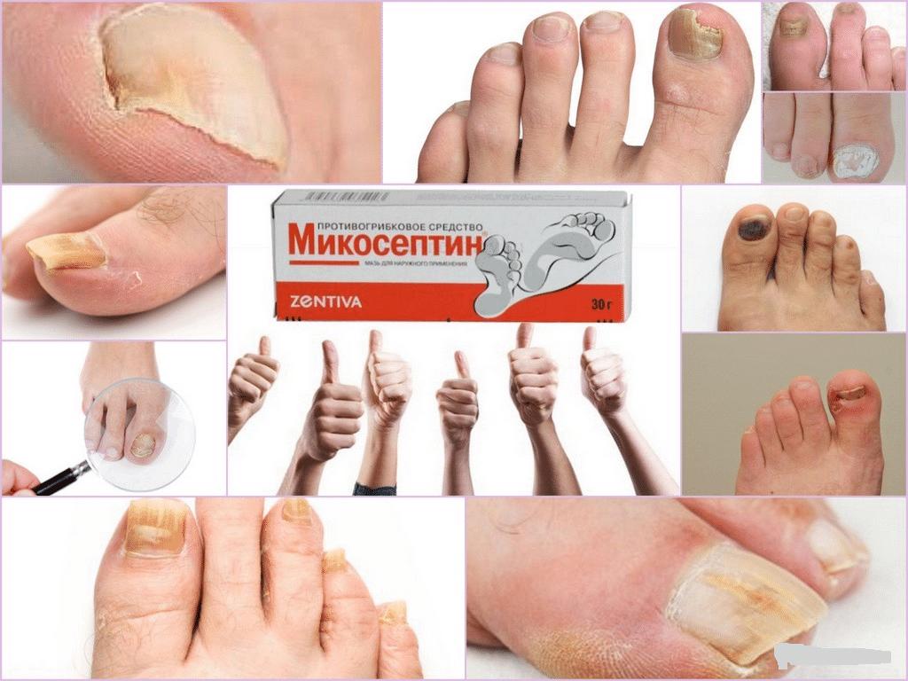 Фармакологические свойства препарата Микосептина