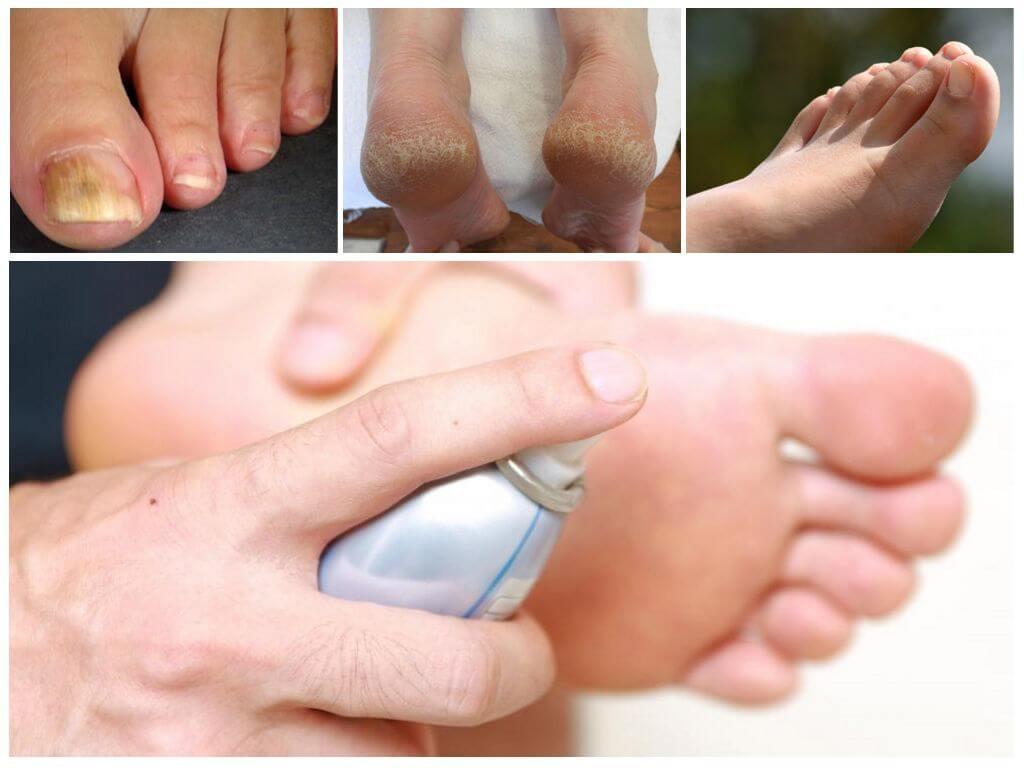 Как применять Мирамистин для лечения грибка