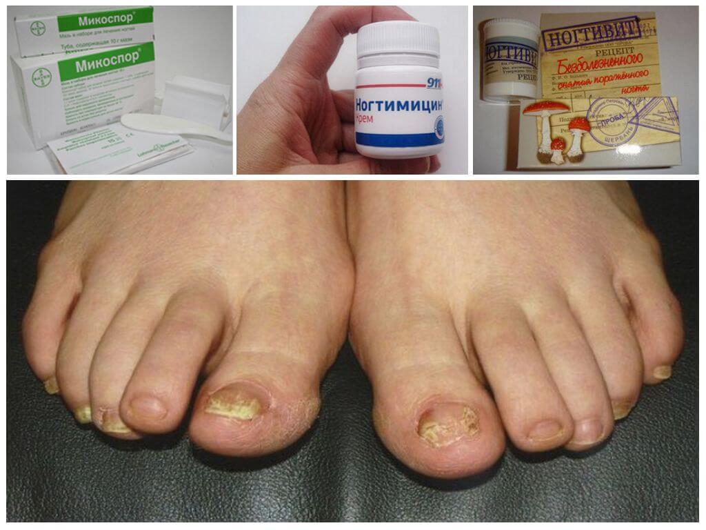 Цена и аналоги препарата Ногтимицин