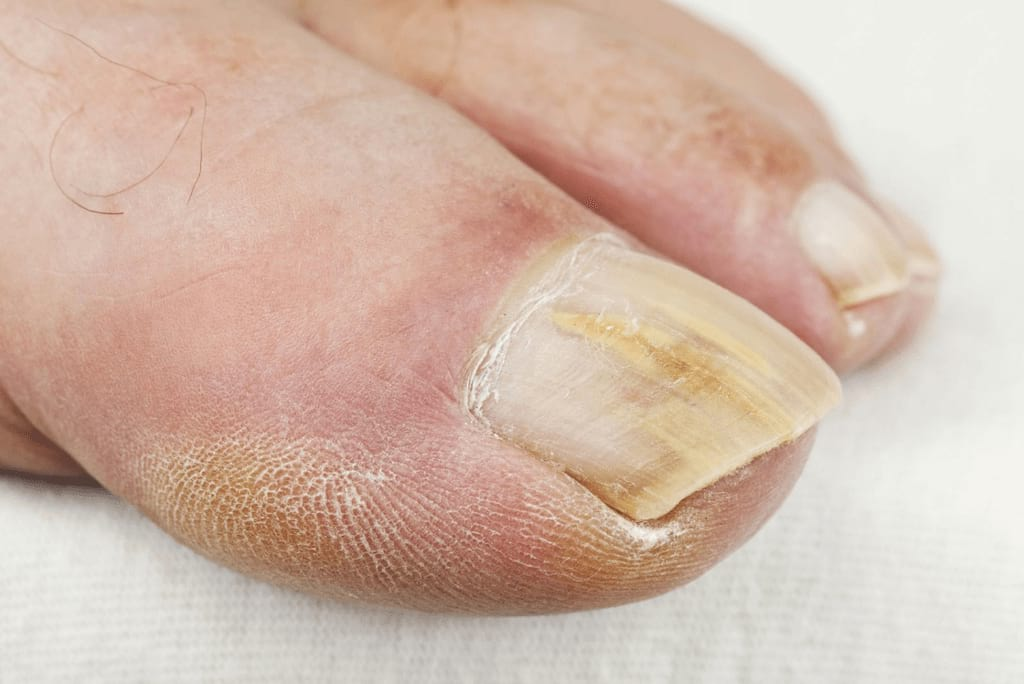 Лечение грибка ногтей домашними средствами