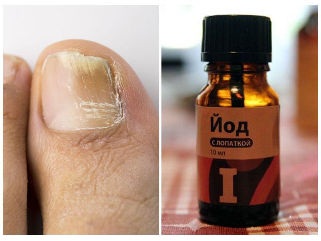 Лечение грибка ногтей на ногах йодом