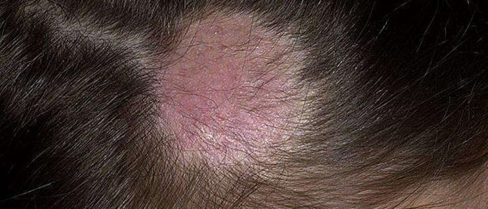 Трихофития, стригущий лишай: симптомы, лечение, профилактика