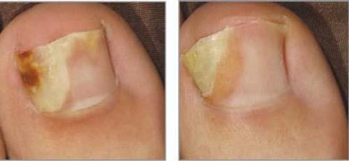 дерматофитный микоз ногтей