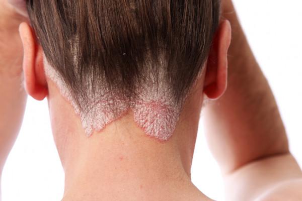 Псориаз головы- можно ли его вылечить?